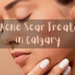 Best Acne Scar Treatment in Calgary